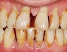 Gum disease linked to higher risk of hypertension