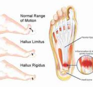Foot pain in the morning or after rest?