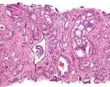 New blood test for prostate cancer avoids invasive biopsies